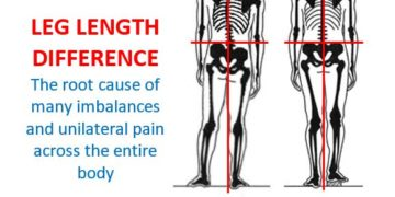 Leg Length Difference/Discrepancy